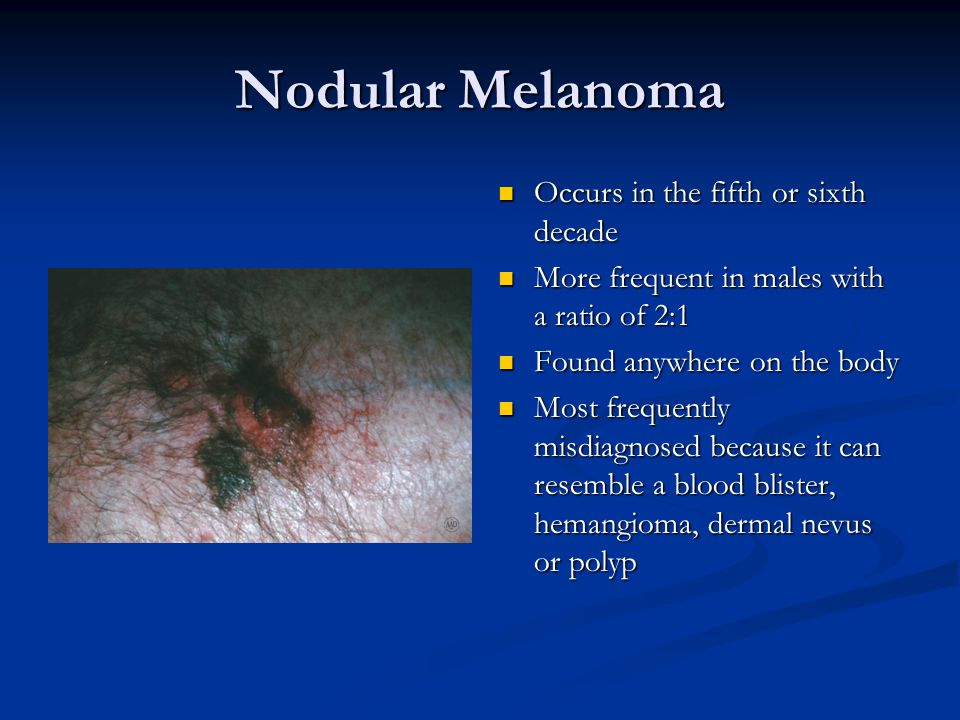 Nodular Melanoma Occurs in the fifth or sixth decade