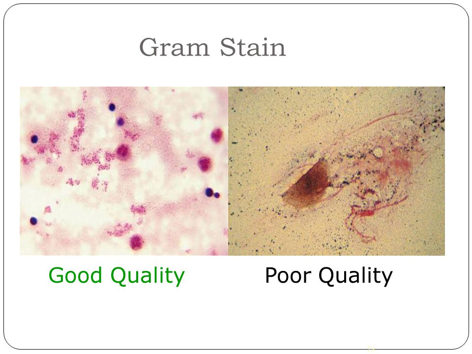 Gram Stain Good Quality Poor Quality 24 24