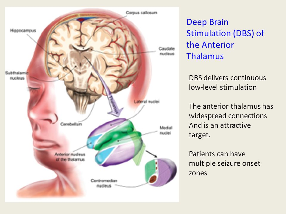 Stimulating The Brain In Epilepsy Ppt Video Online Download