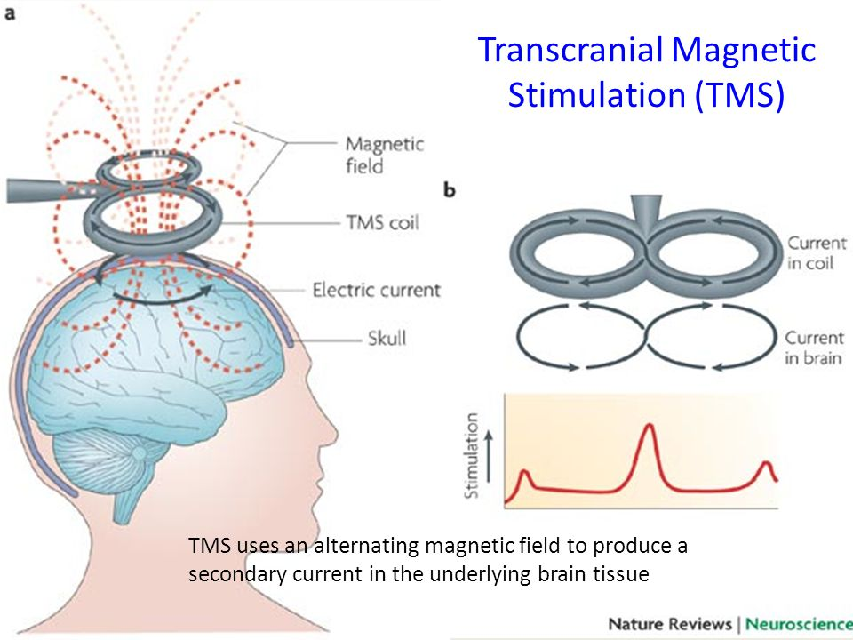 transcranial magnetic stimulation tms We regularly receive inquiries about transcranial magnetic stimulation (tms),  deep brain stimulation, and other newer treatments to help those individuals  who.