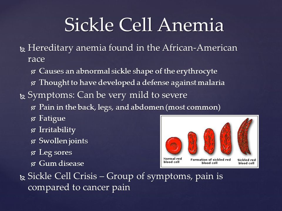 sickle cell anaemia and malaria pdf