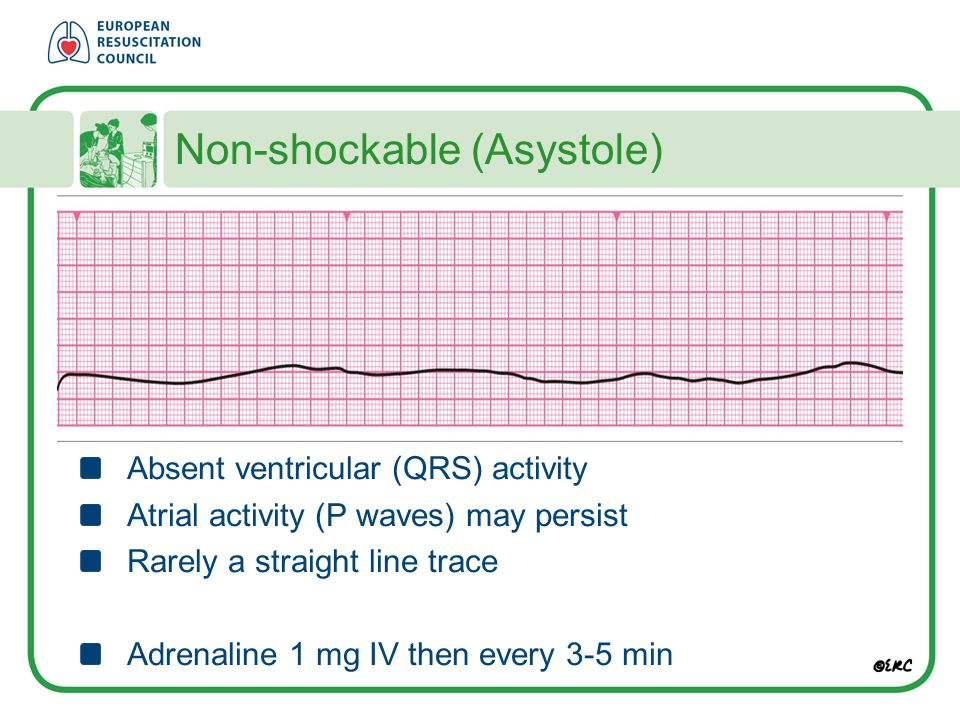 Non-shockable (Asystole)