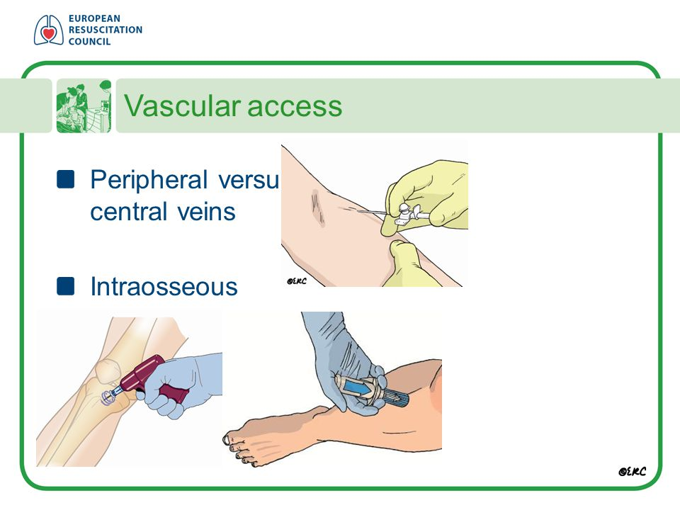 Vascular access Peripheral versus central veins Intraosseous