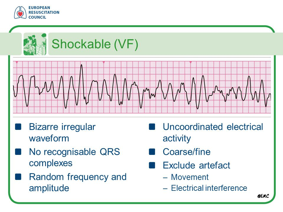 Shockable (VF) Bizarre irregular waveform