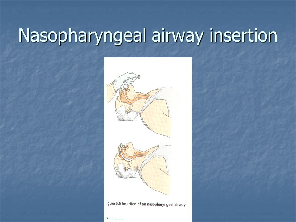 Nasopharyngeal airway insertion