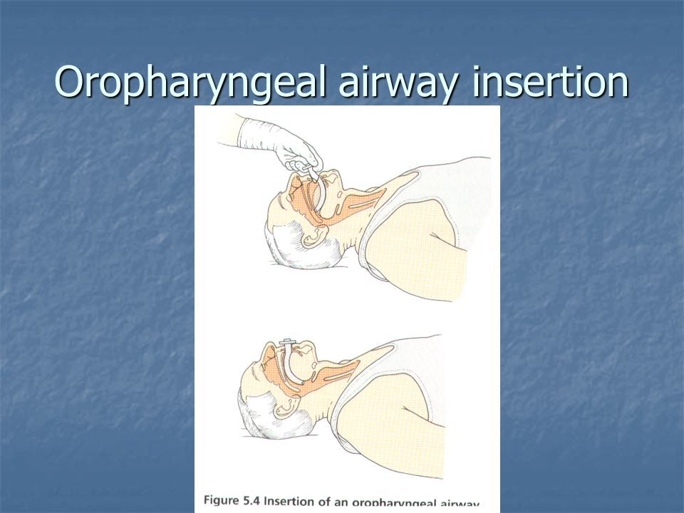 Oropharyngeal airway insertion
