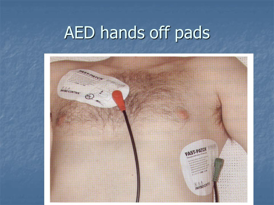 AED hands off pads