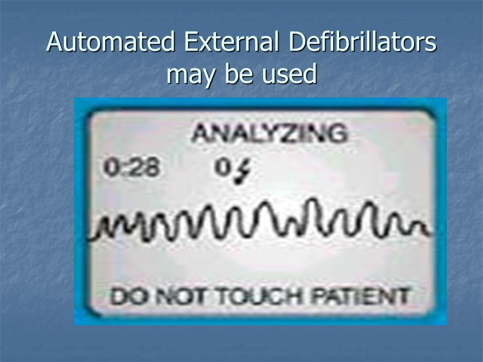 Automated External Defibrillators may be used