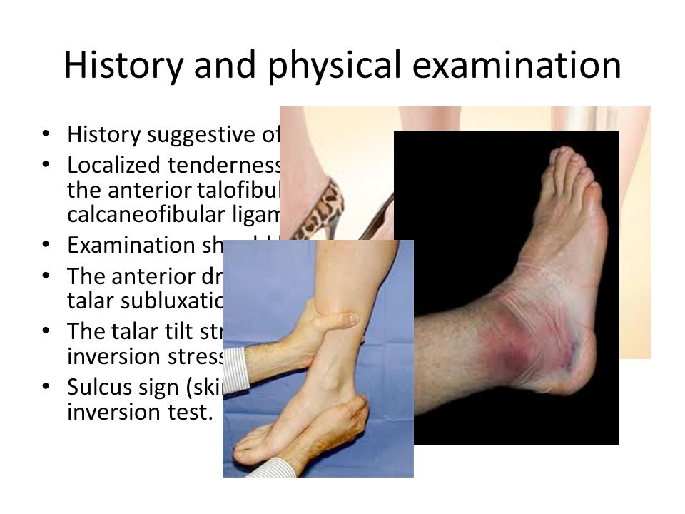 Sport & Soft tissues injuries - ppt video online download