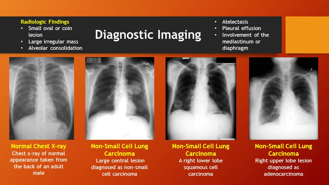 LUNG CANCER (Bronchogenic Carcinoma) - ppt download