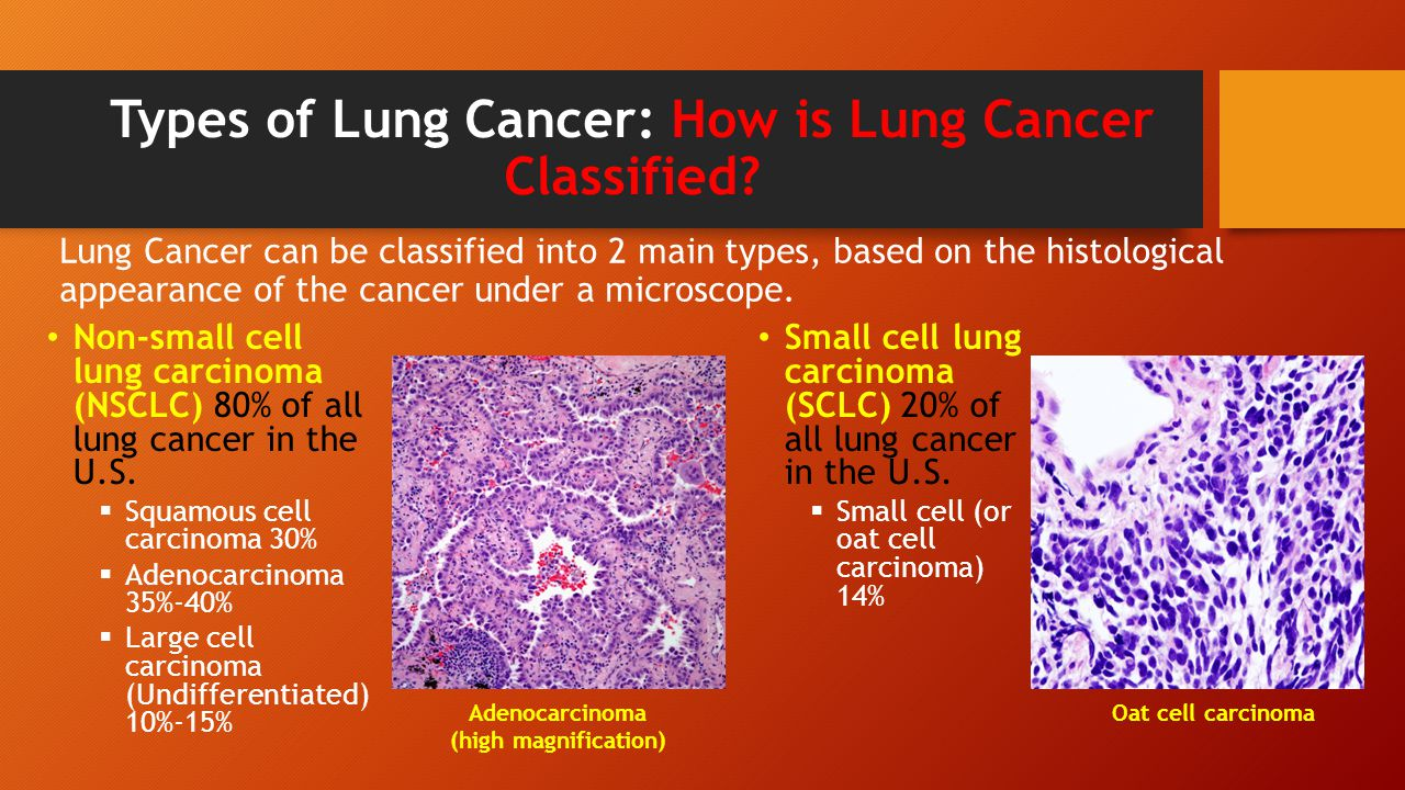 the clinical background information of lung cancer Lung cancer is one of the most common cancers in the world it is a leading cause of cancer death in men and women in the united states cigarette smoking causes most lung cancers the more cigarettes you smoke per day and the earlier you started smoking, the greater your risk of lung cancer.