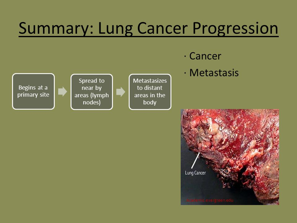 overview of lung cancer essay Beta carotene is an antioxidant that was thought to prevent or reverse smoking-related changes leading to lung cancer pdq cancer prevention overview.