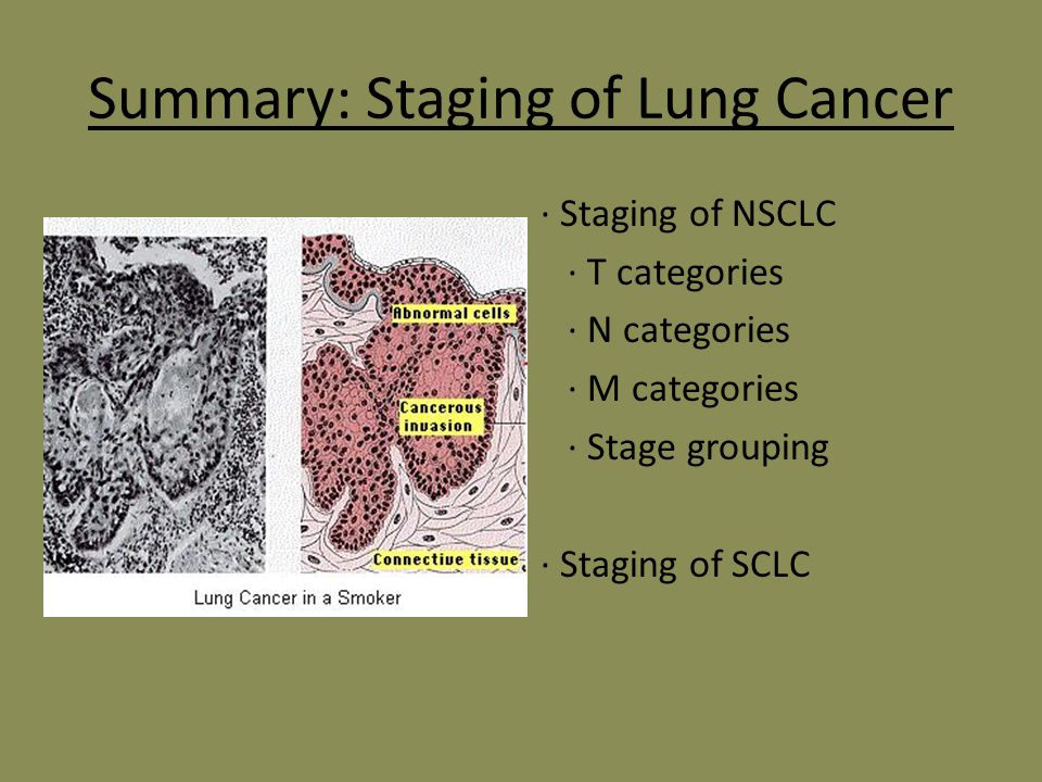 tnm staging lung cancer pdf