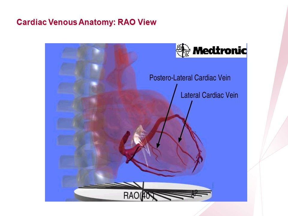 Cardiac venous anatomy 7570743 - follow4more.info