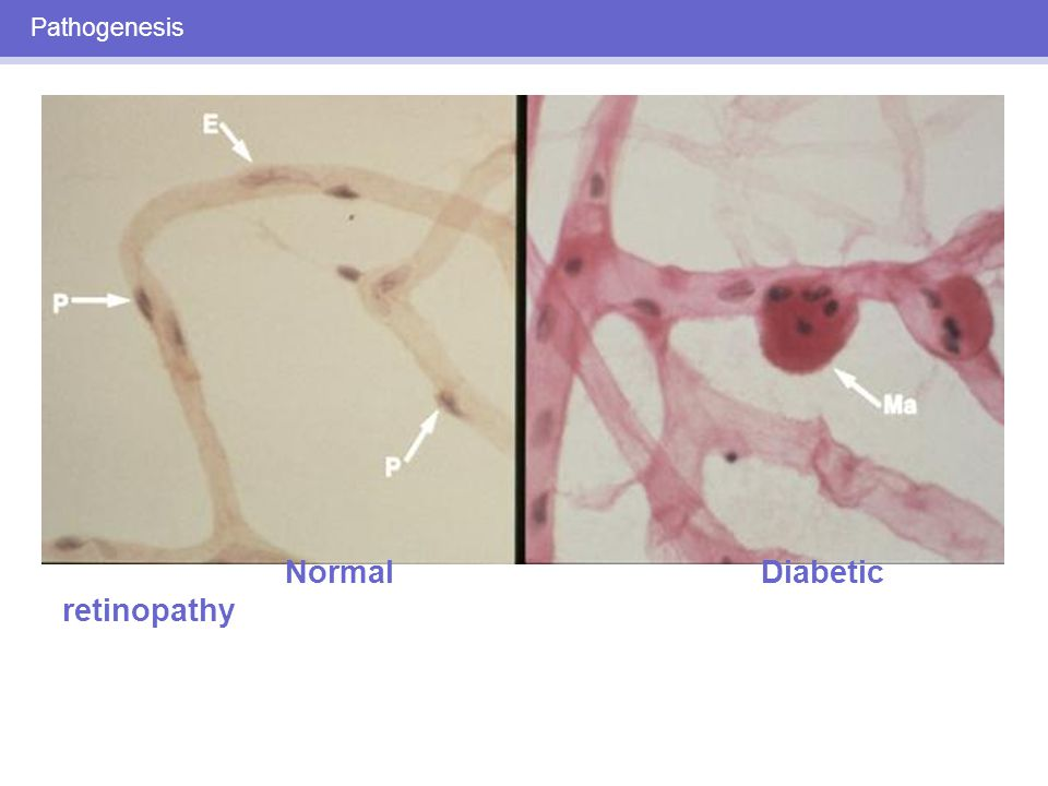 DIABETIC RETINOPATHY: CLINICAL STAGES