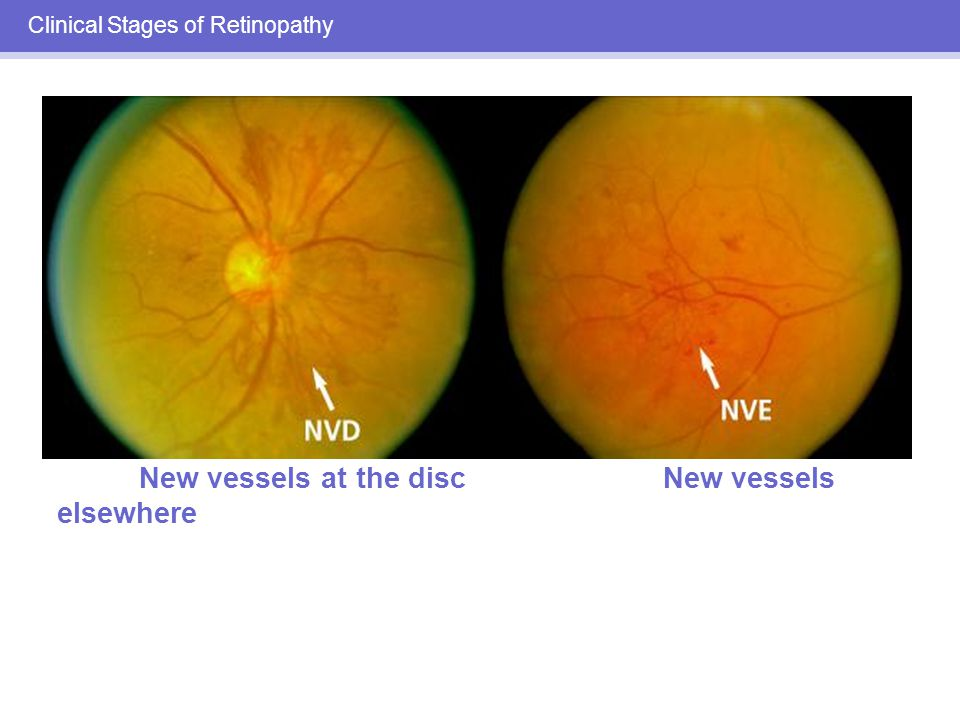 Clinical Stages of Retinopathy