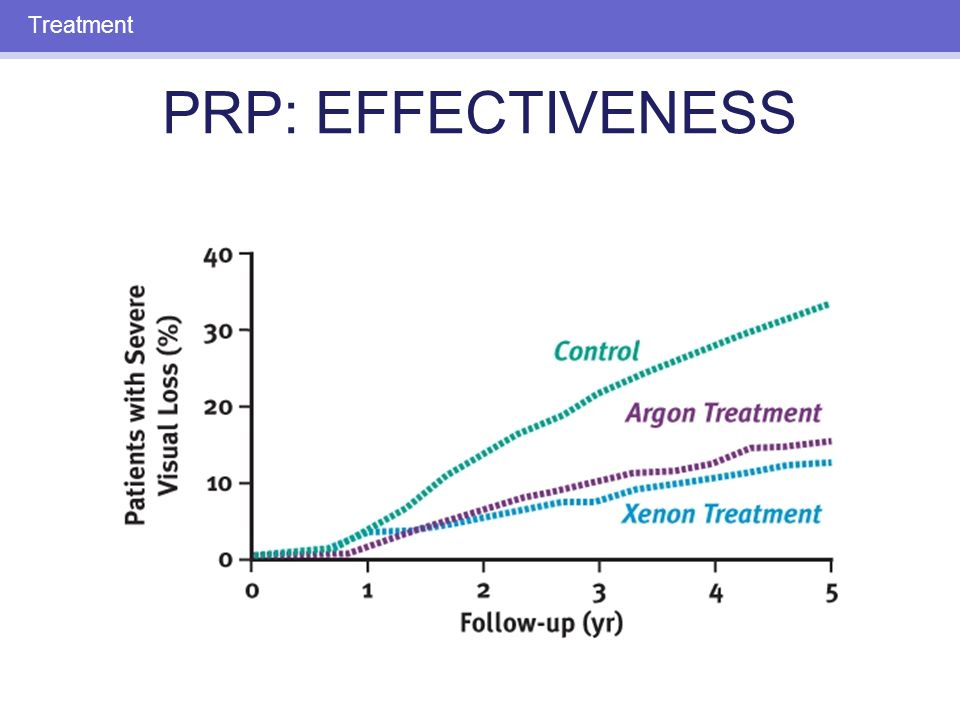 PRP: SIDE EFFECTS Decreased night vision Decreased peripheral vision