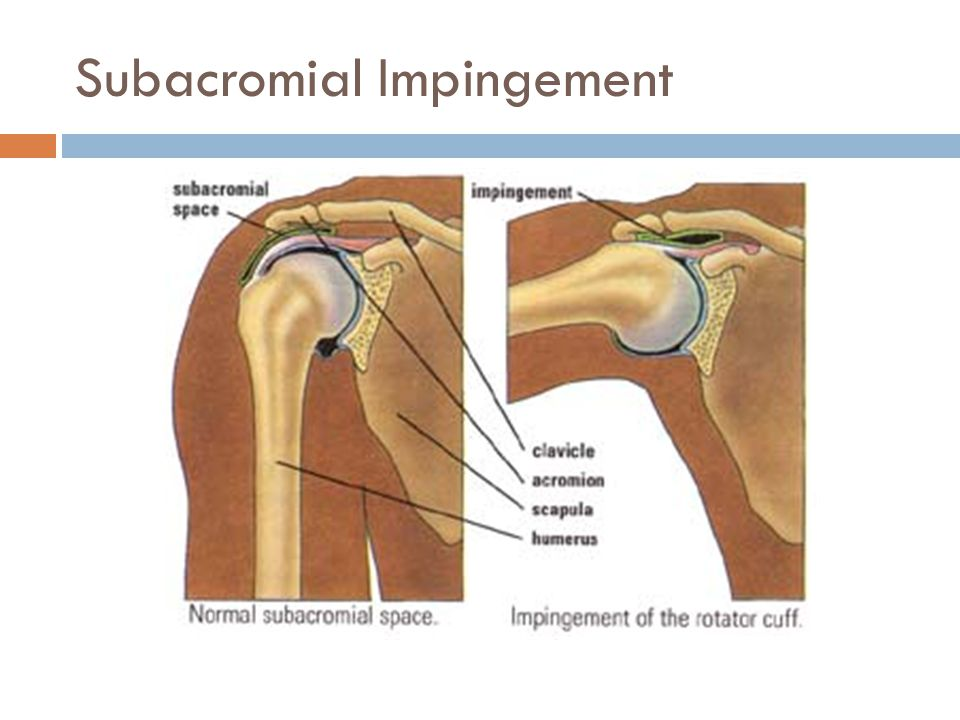 Shoulder Bursitis Pain And Impingement Syndrome Verywell