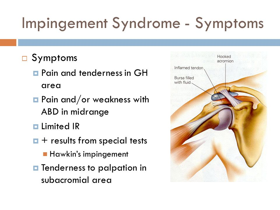impingement syndrome case study and soap Shoulder impingement syndrome for subacromial impingement syndrome: a study of for patients with subacromial impingement syndrome: a case.