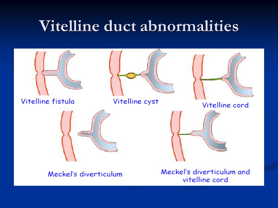 Vitelline duct ultrasound