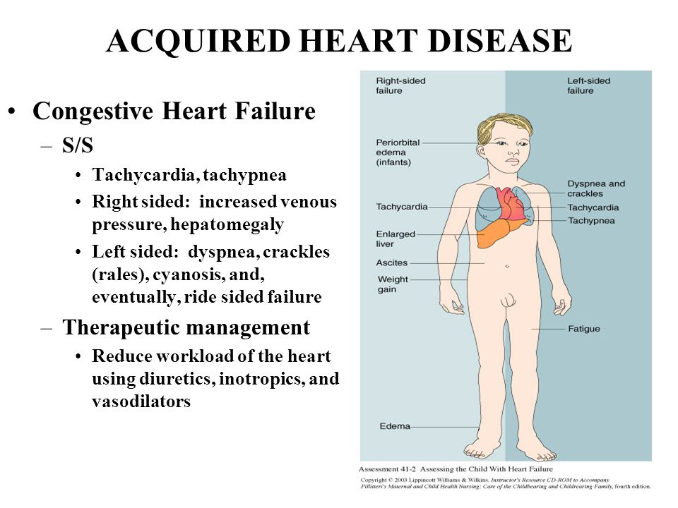 Heart disease essay