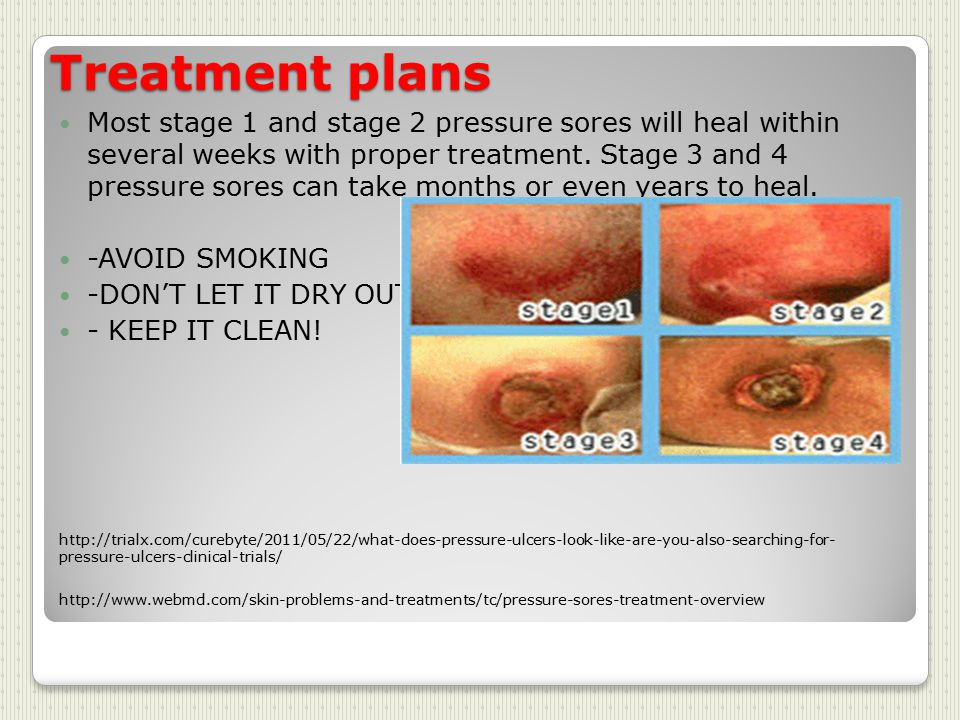 bed sores treatment at home. the procedure is being offered as a