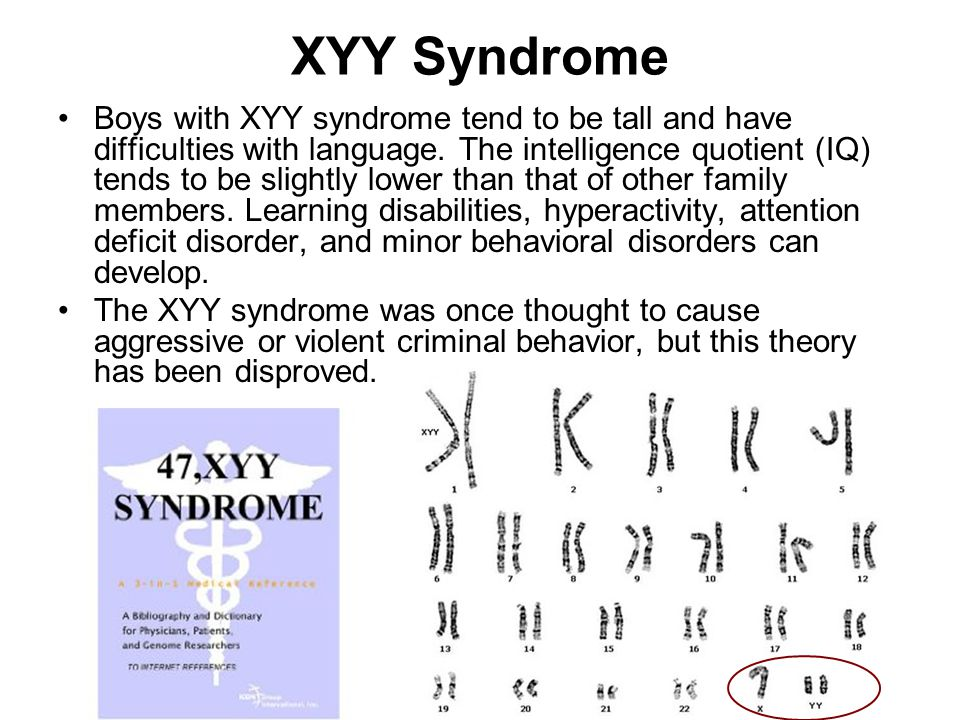 the characteristics of xyy syndrome a rare genetic disorder Xyy syndrome is a rare birth defect that occurs when a male infant is born   according to the national institutes of health (nih), the condition occurs  most  cases of xyy syndrome are not inherited, and the syndrome occurs.