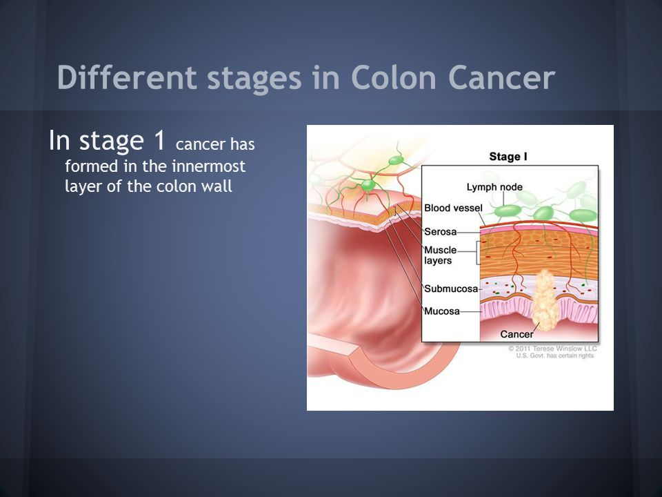 Different stages in Colon Cancer