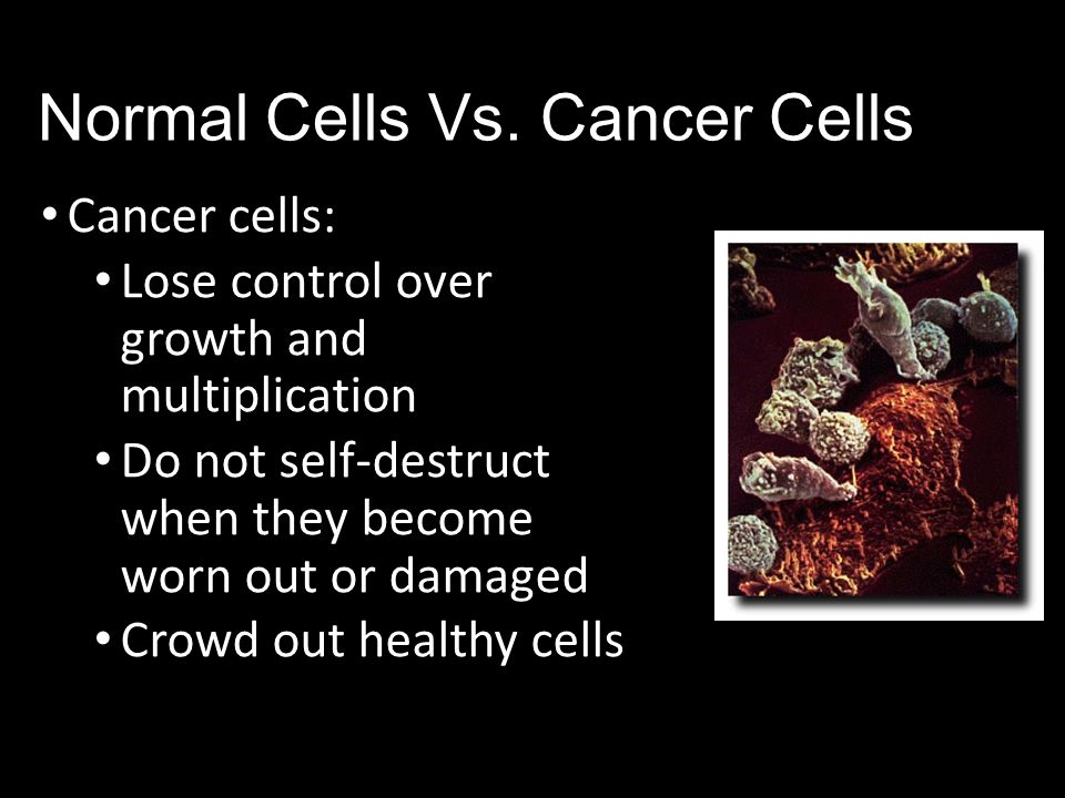 Normal Cells Vs. Cancer Cells