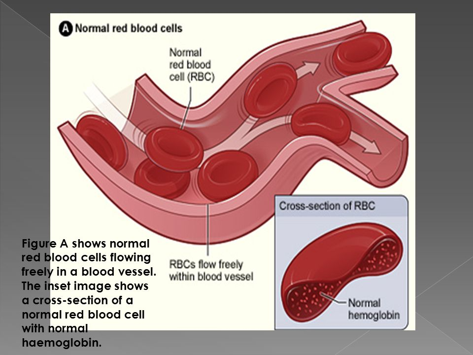 Figure A shows normal red blood cells flowing freely in a blood vessel