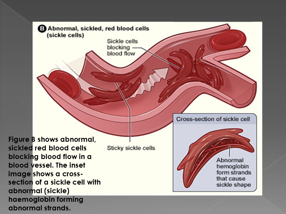 Figure B shows abnormal, sickled red blood cells blocking blood flow in a blood vessel.