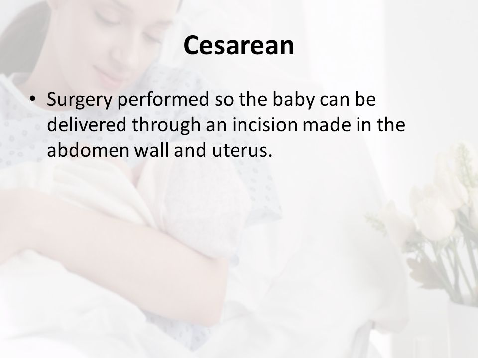 Cesarean Surgery performed so the baby can be delivered through an incision made in the abdomen wall and uterus.