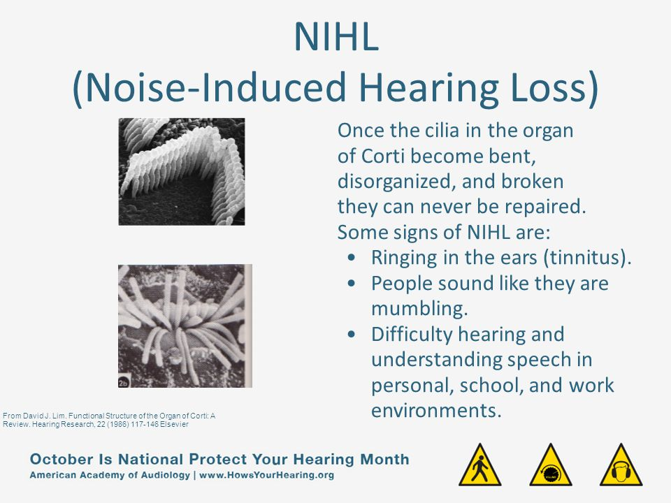 NIHL (Noise-Induced Hearing Loss)