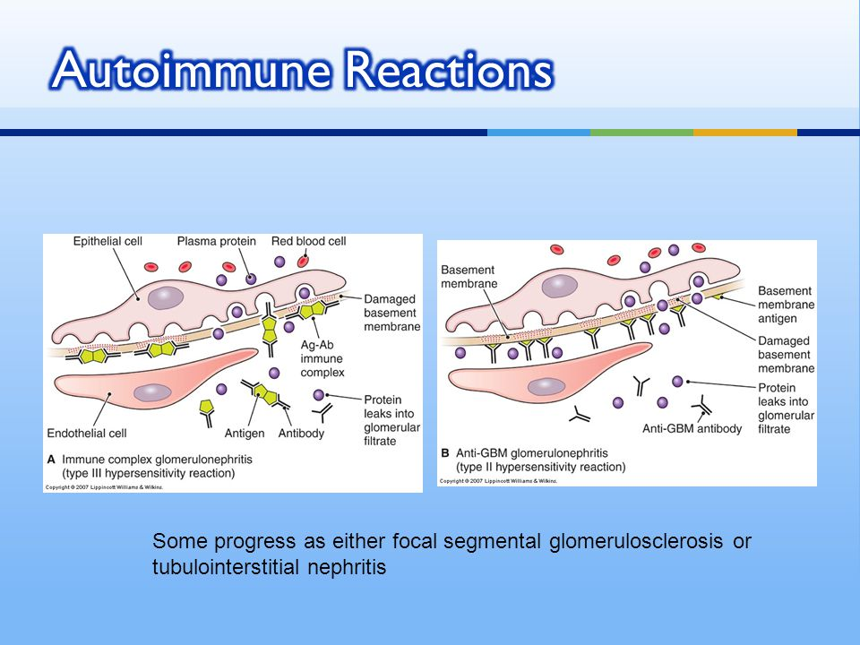 Autoimmune Reactions Some progress as either focal segmental glomerulosclerosis or.