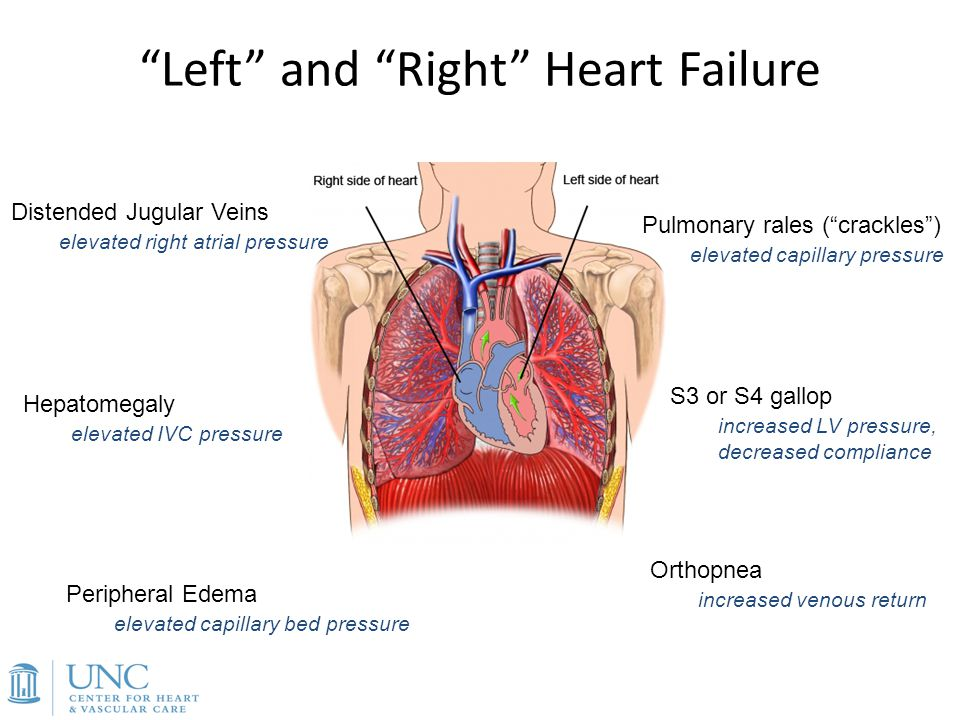 Acute(ly) Decompensated Heart Failure - ppt download