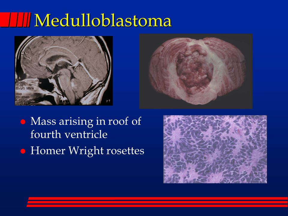 Medulloblastoma Mass arising in roof of fourth ventricle