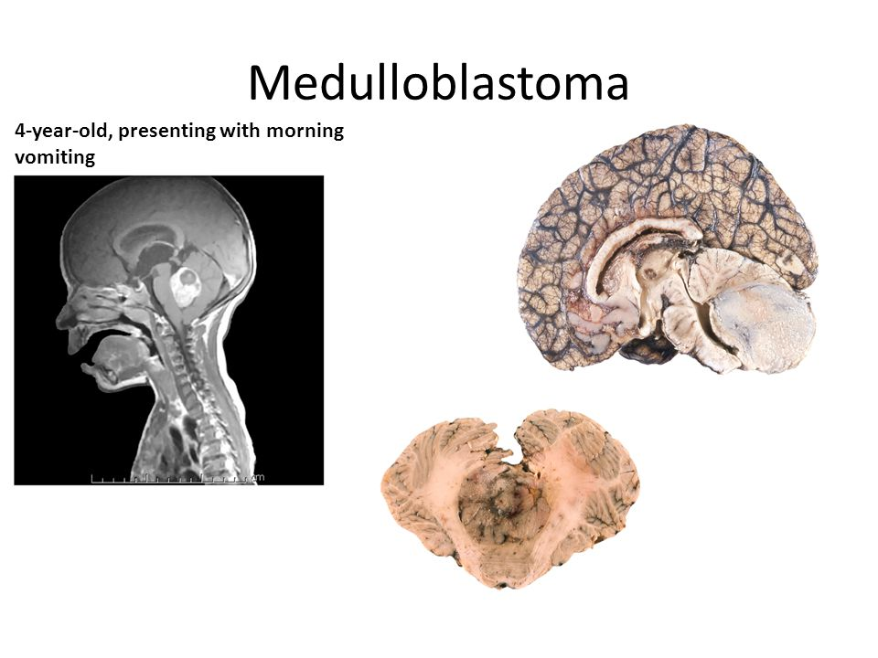 Medulloblastoma 4-year-old, presenting with morning vomiting