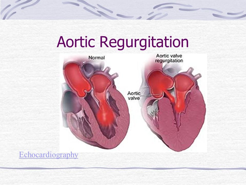 Cardiovascular: Valvular, Cardiomyopathy, Aneurysm and ...  Aortic