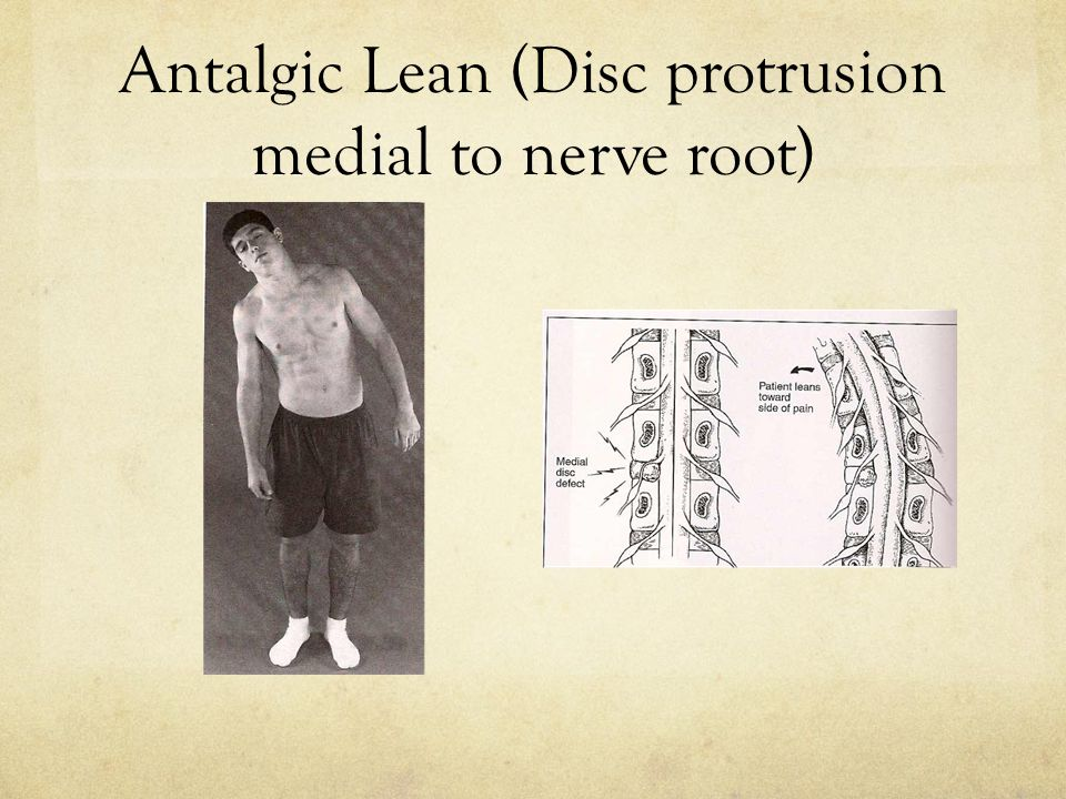 Antalgic Lean (Disc protrusion medial to nerve root)