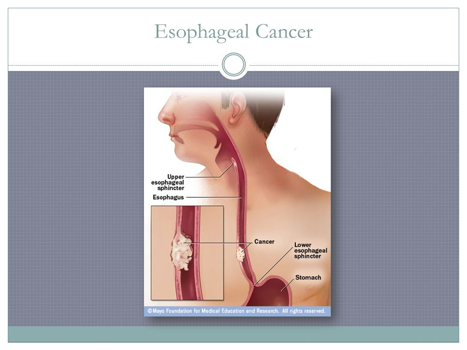 esophageal cancer essay Esophageal cancer the esophagus is in the chest area and it is about ten inches long this organ is a part of the digestive tract food moves from the mouth through the esophagus to the stomach studies show that men are more at risk than women starting at the age of 65 or older is usually the risk factors of esophageal cancer.