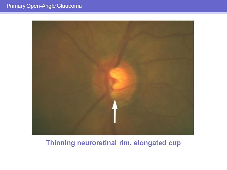 optic nerve and open angle glaucoma The optic nerve resulting in permanent vision loss it has been called  primary  open angle glaucoma this form of glaucoma is also called chronic open angle.