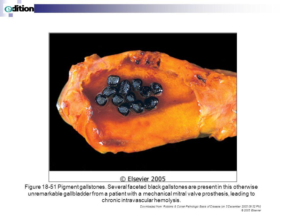 Black gallstones