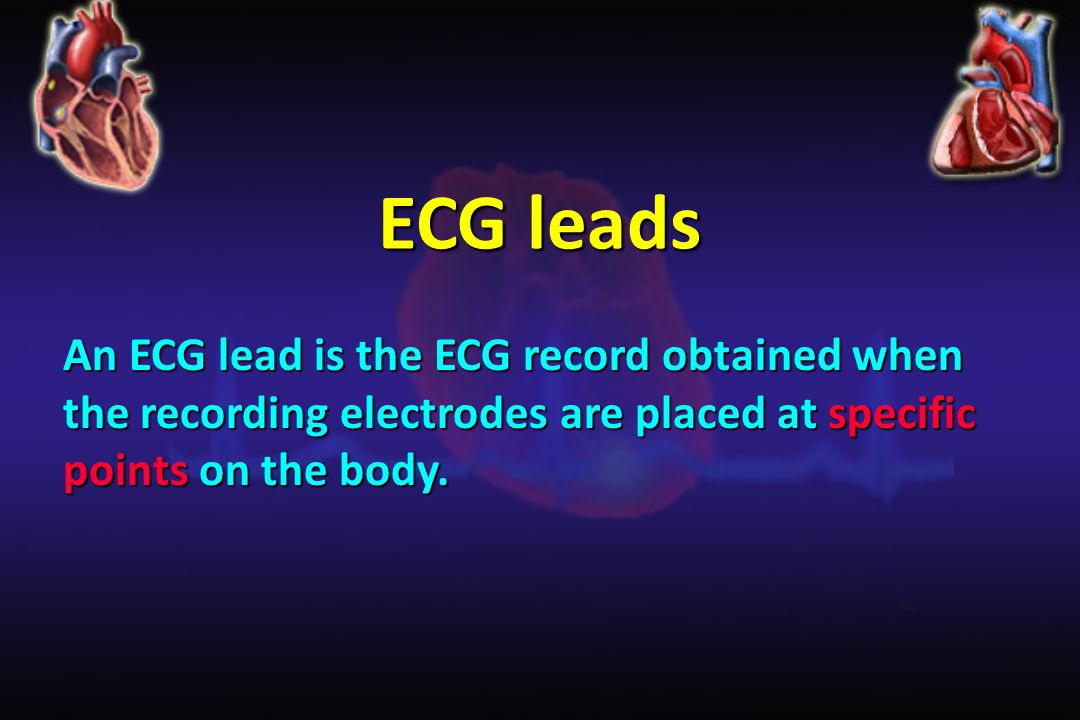ECG leads An ECG lead is the ECG record obtained when the recording electrodes are placed at specific points on the body.