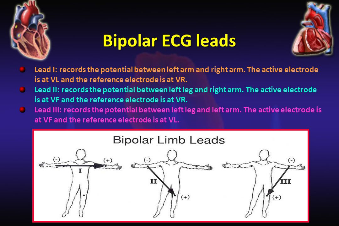 Bipolar ECG leads Lead I: records the potential between left arm and right arm. The active electrode is at VL and the reference electrode is at VR.