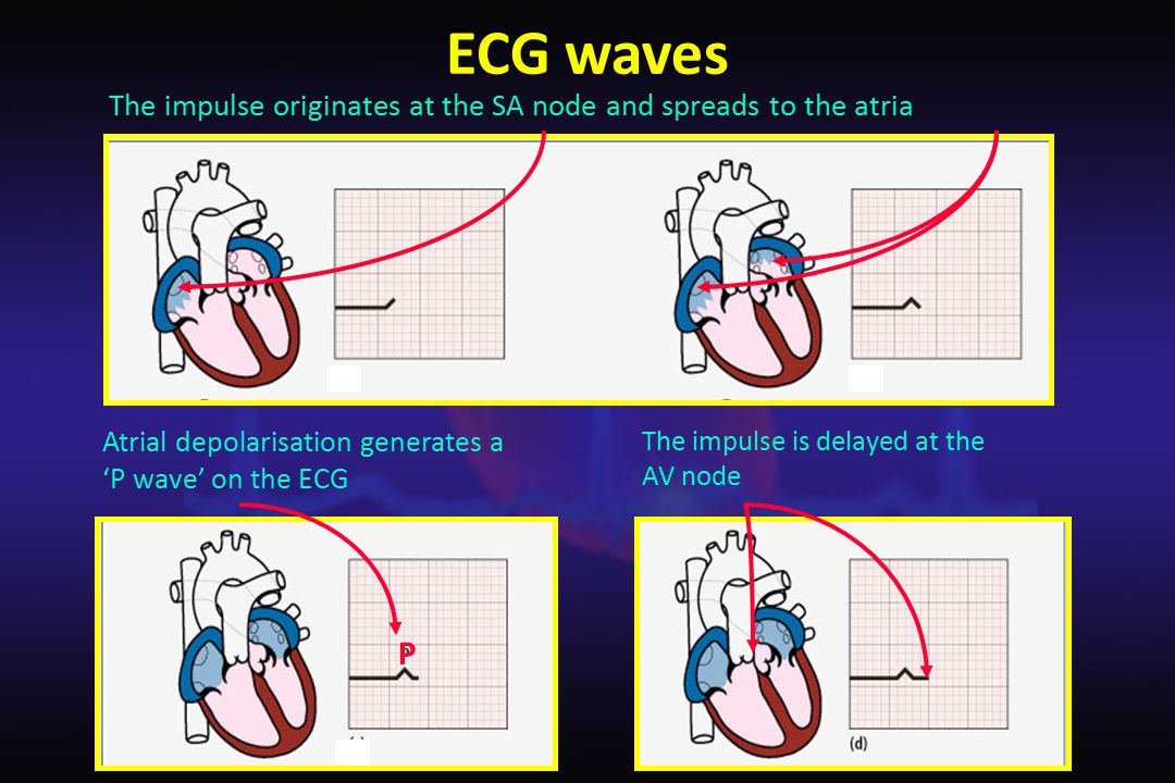 ECG waves The impulse originates at the SA node and spreads to the atria. Atrial depolarisation generates a 'P wave' on the ECG.
