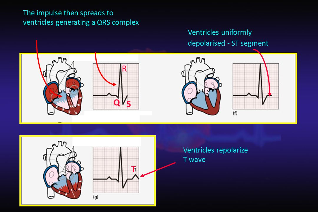 The impulse then spreads to ventricles generating a QRS complex