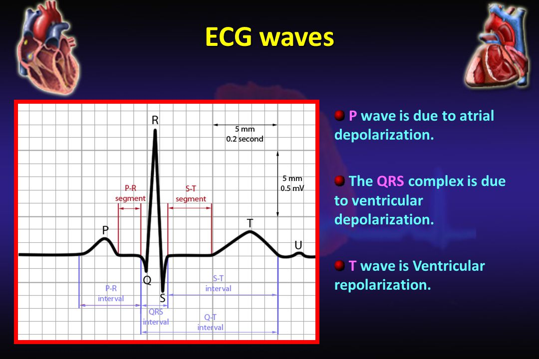 ECG waves P wave is due to atrial depolarization.