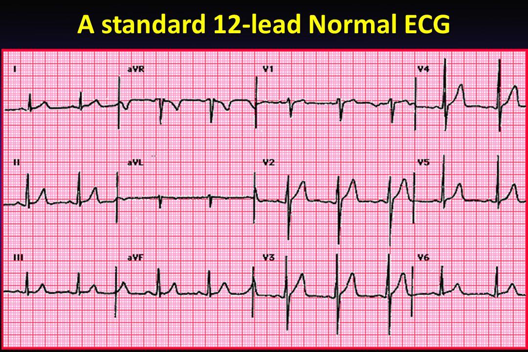 Cardiovascular Block Electrocardiogram (ECG) - ppt video online download