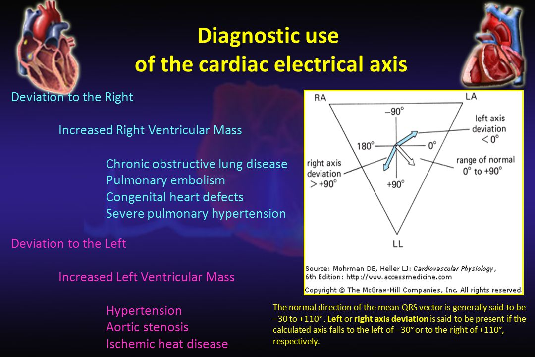 of the cardiac electrical axis