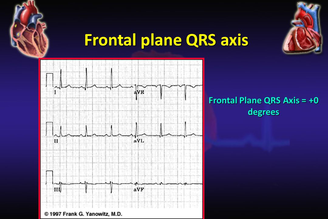 Frontal Plane QRS Axis = +0 degrees